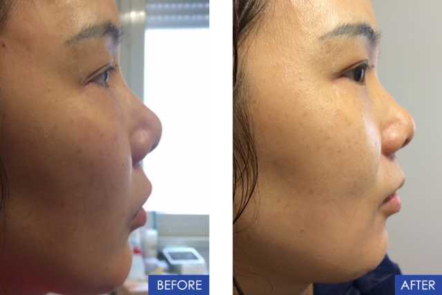 Non-Surgical Asian Rhinoplasty