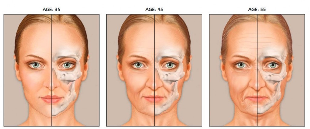 no surgery facelift edmonton - bone loss as we age