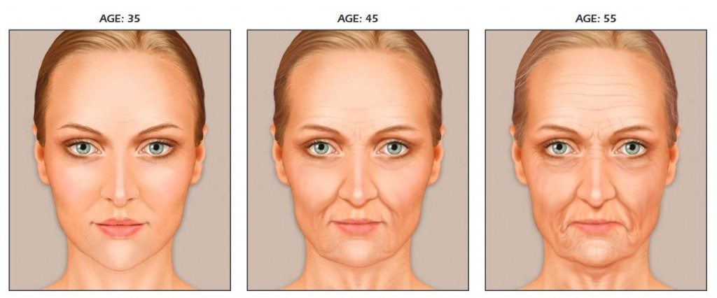 facelift Edmonton - signs of facial aging from age 35 to 45 to 55