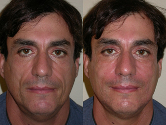 COMPLICATIONS OF SCULPTRA, JUVEDERM, AND OTHER FILLERS - DR ...