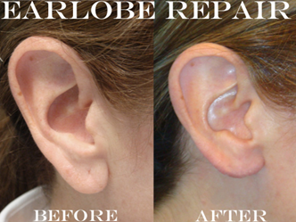 Earlobe Repair Edmonton Dr Sharma Sharma Skin Hair Surgery