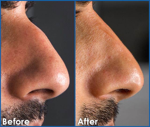 Non Surgical Rhino Plasty Mens Nose Correction in edmonton s