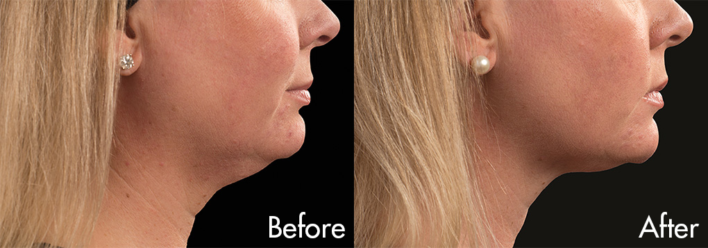 Female-Coolsculpt-Chin-Neck-before-and-after-1