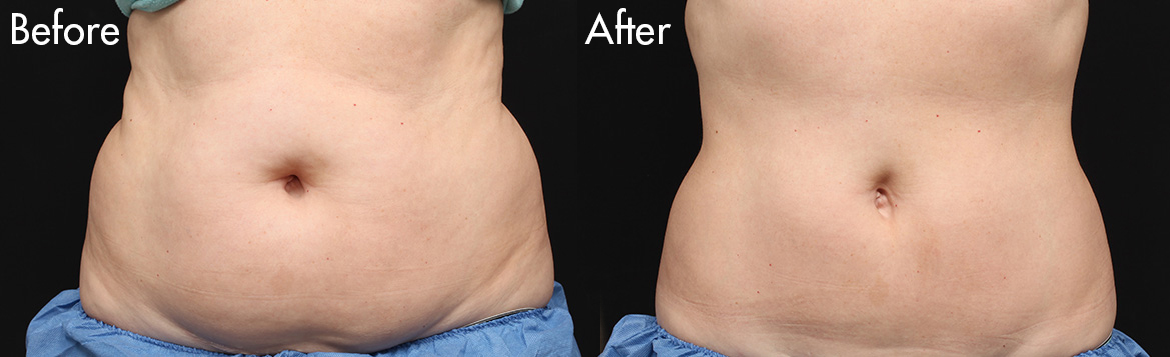 Female-Coolsculpt-Stomach-fat-before-and-after-1