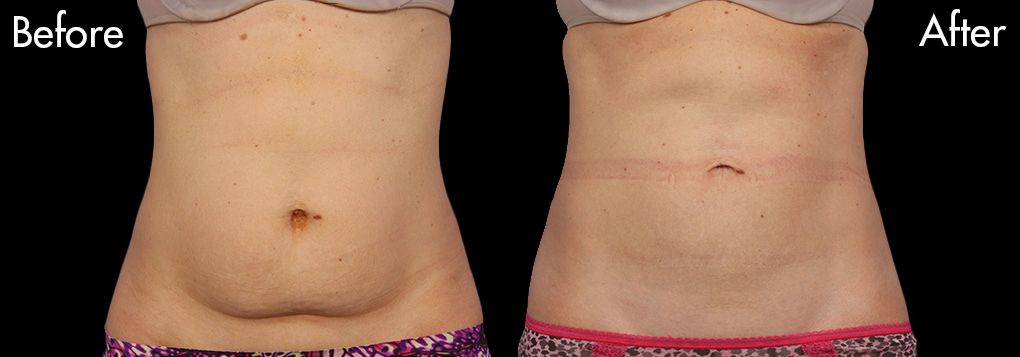 Female-Coolsculpt-abdomen-before-and-after-1
