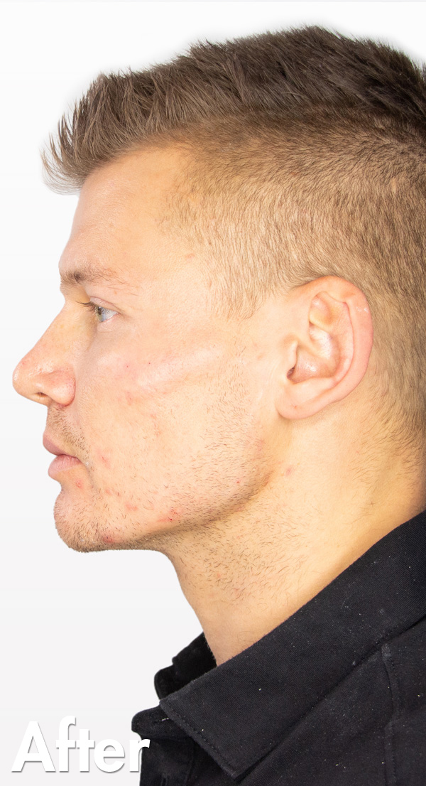 Jaw_Kory_2_After