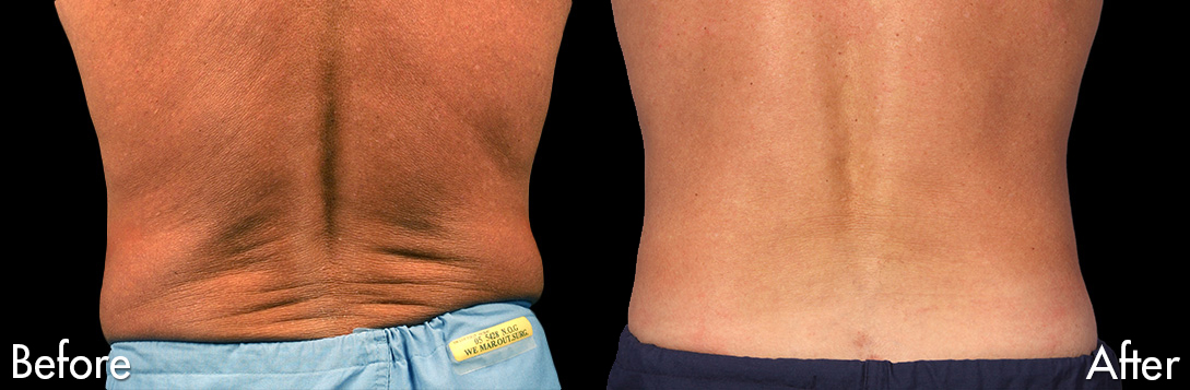 Coolsculpting Male Back
