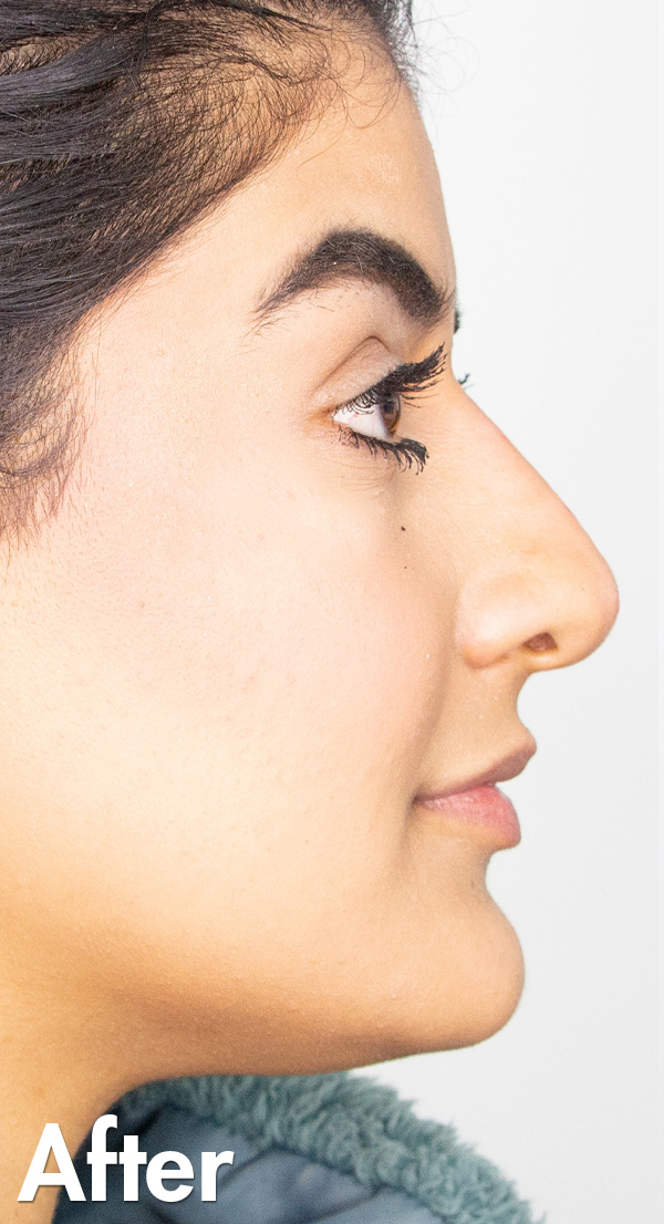 Non Surgical Nose Job Edmonton Natasha