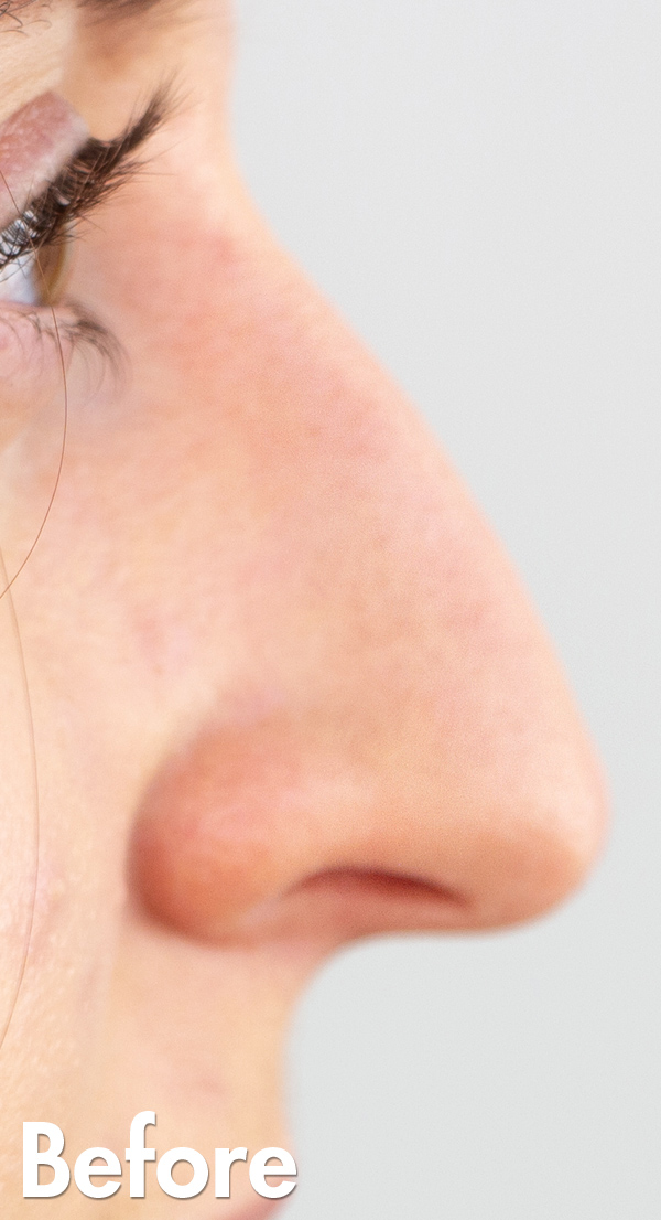 Non Surgical Rhinoplasty Before