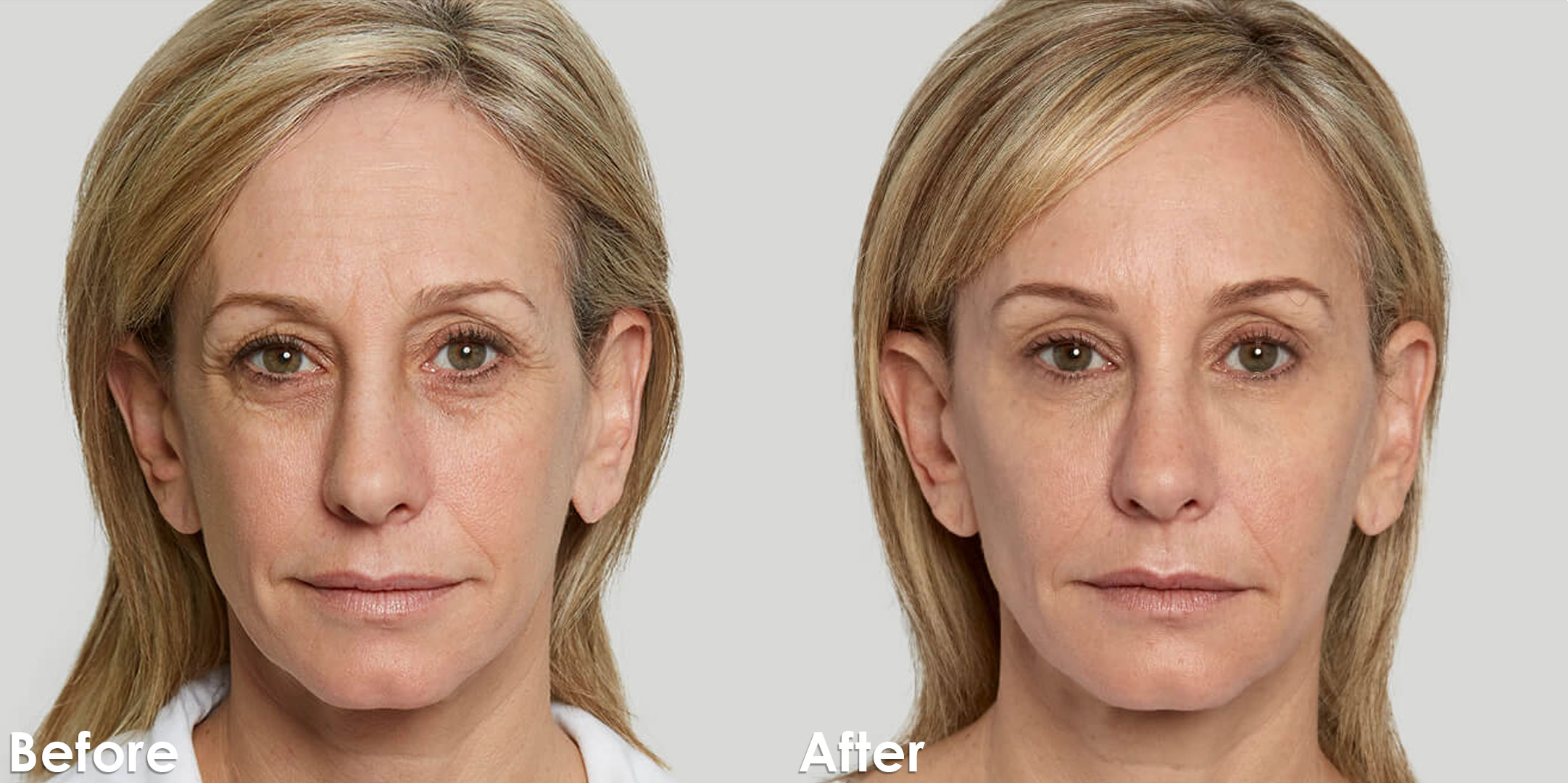 Sculptra_Corporate_Before-and-after_2