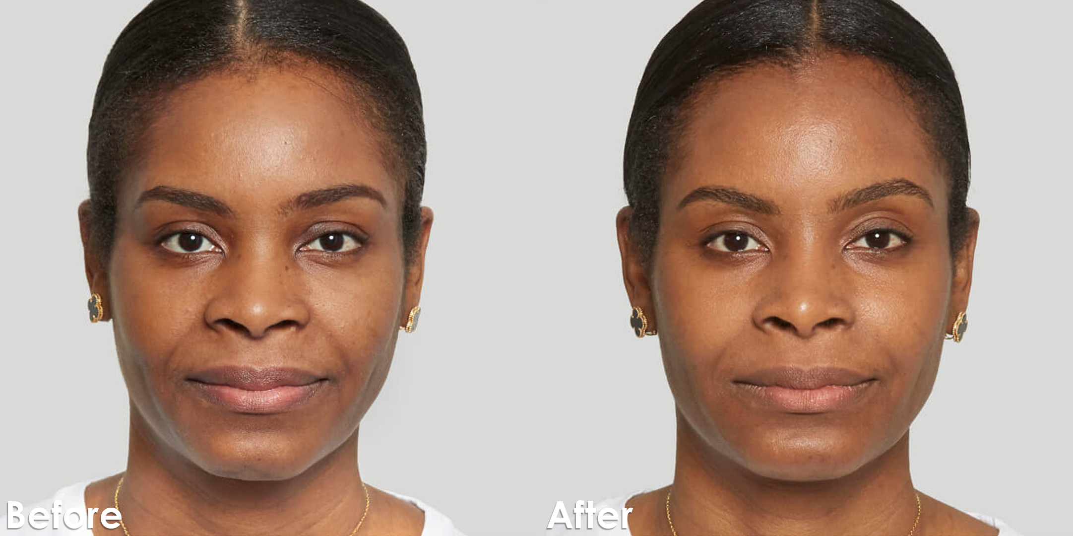 Sculptra_Corporate_Before-and-after_3