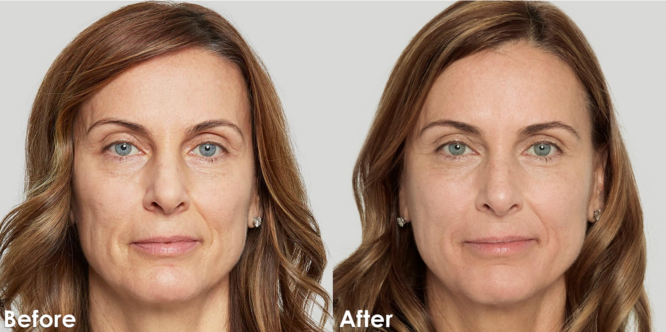 Sculptra_Corporate_Before-and-after_V1