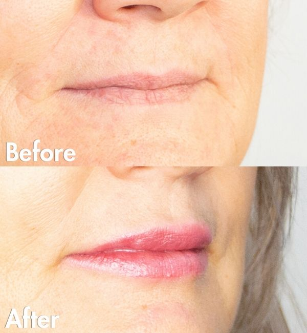 Lip Augmentation Edmonton