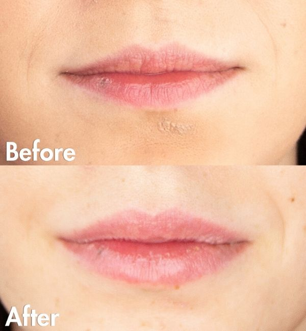 Lip Fillers Edmonton | Sharma Skin & Hair Surgery