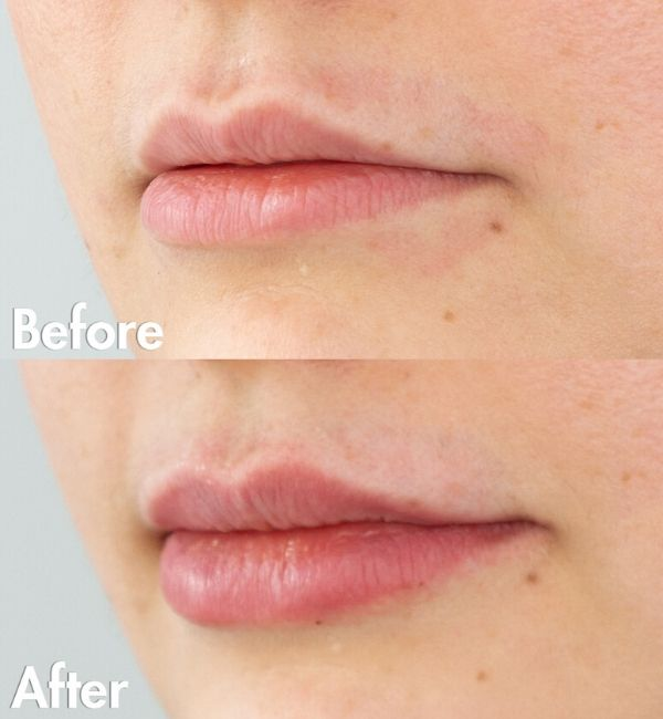 Lip Injections Edmonton | Sharma Skin & Hair Surgery
