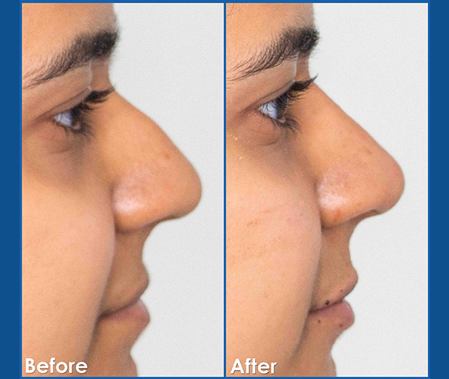 Female_Non-Surgical-rhinoplasty-before-and-after-dermal-filler-treatment-in-edmonton-the-sharma-clinic2