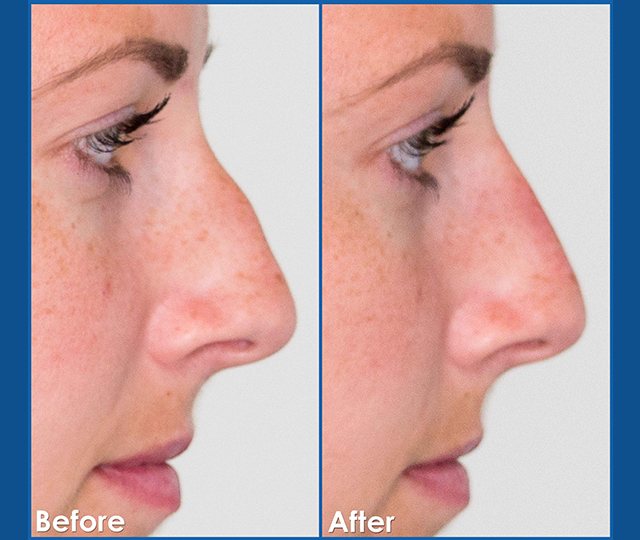 Female_Non-Surgical-rhinoplasty-crooked-nose-before-and-after-dermal-filler-treatment-in-edmonton-the-sharma-clinic2