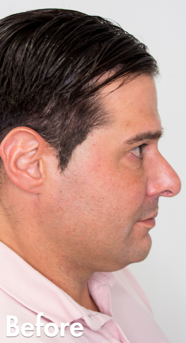 Mens_Jawline_Enhancement_Before