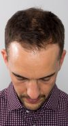 hair-transplant-frontal-hairline-before