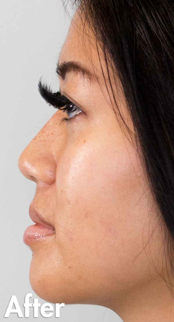 Asian-non-surgical-rhinoplasty-female-After