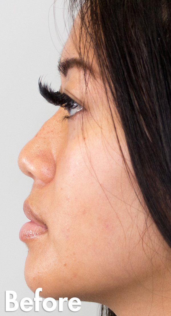 Asian-non-surgical-rhinoplasty-female-before