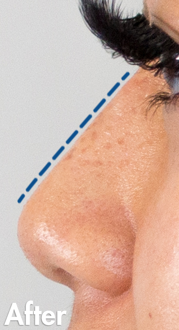 Asian-non-surgical-rhinoplasty-female-closeup-after