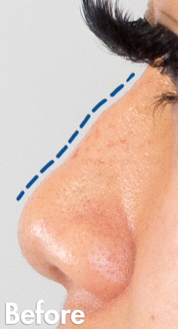 Asian-non-surgical-rhinoplasty-female-closeup-before