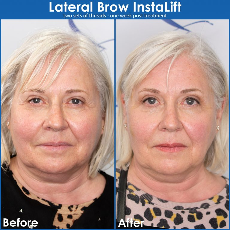 Thread-lift-before-and-after-for-larger-eyes