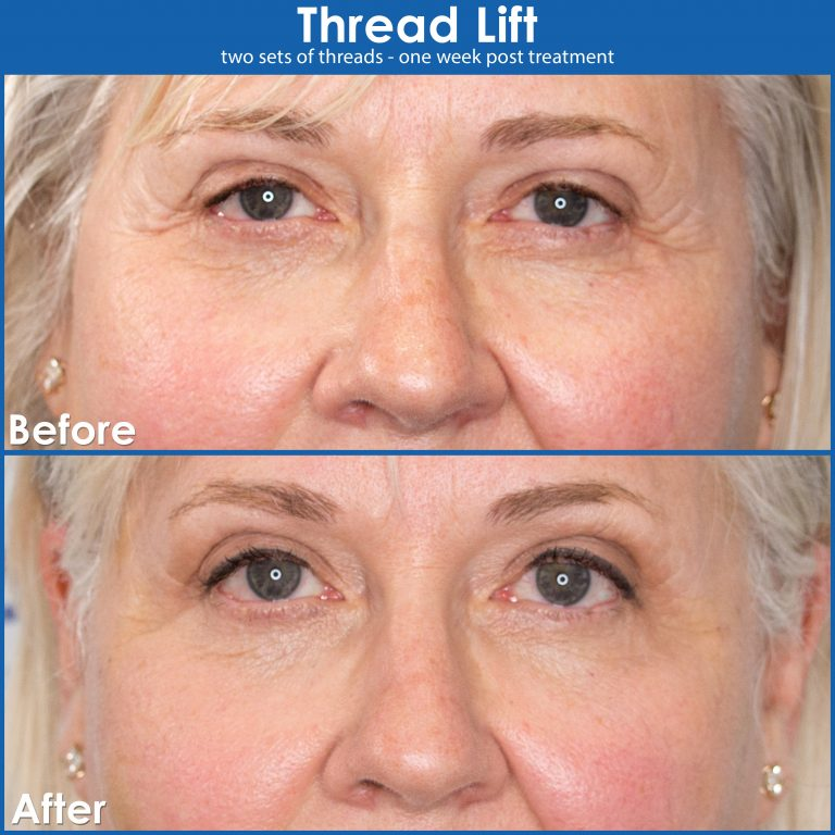 Thread-lift-before-and-after-for-larger-eyes-close-up