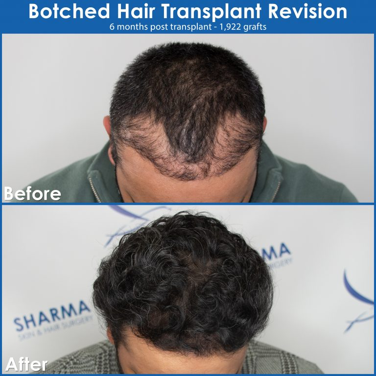 botched-hair-transplant-revision-before-and-after-image-edmonton1