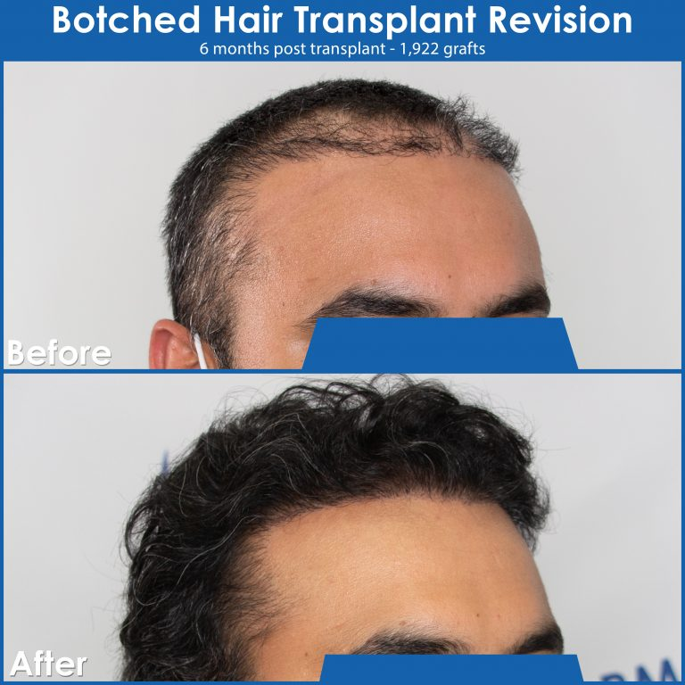 botched-hair-transplant-revision-before-and-after-image-edmonton-2