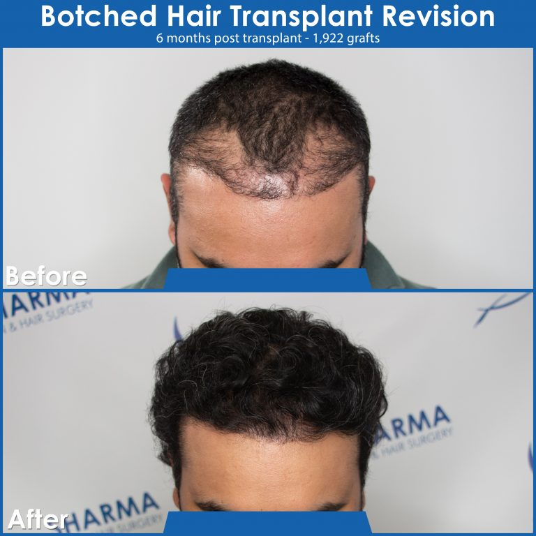 botched-hair-transplant-revision-before-and-after-image-edmonton-3