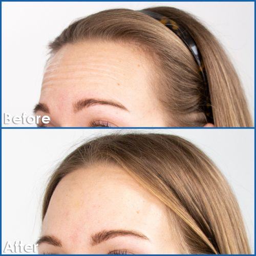 Botox-Treatment-before-and-after-Edmonton-Best-Botox-and-Dysport